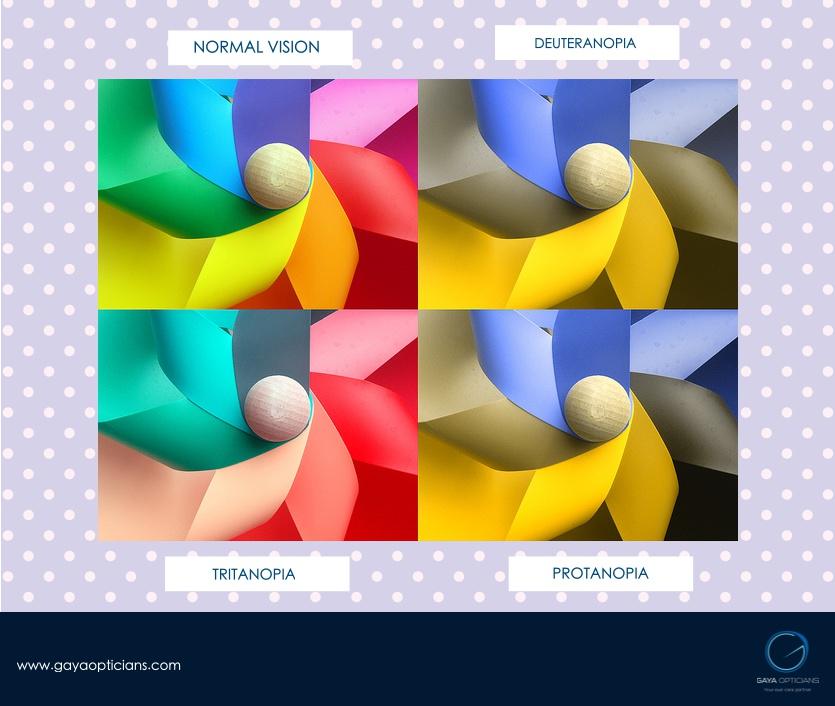 Colour Defectiveness