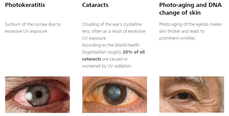 UV Eye Damages and how to protect
